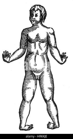 congenital deformity stock photos  u0026 congenital deformity