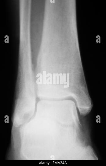 Shin lower leg and ankle injury traumatology medical x ray orthopedic