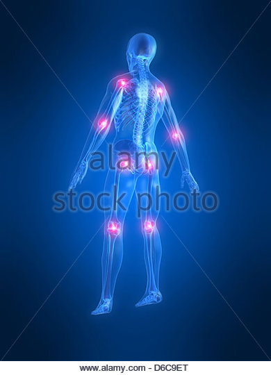 medical illustrations,locate,pain,joints - Stock Image