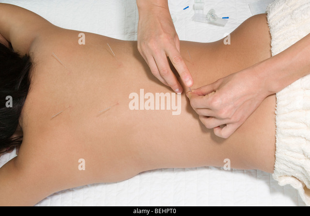Woman receiving an acupuncture treatment from a therapist - Stock-Bilder