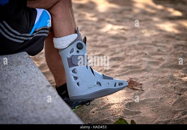 broken ankle stock photos broken ankle