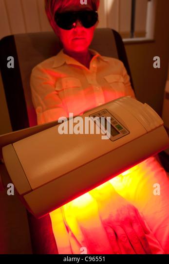 Photodynamic therapy. Patient undergoing photodynamic therapy. - Stock-Bilder
