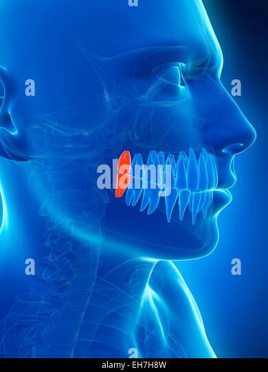 how to prepare for multiple teeth extraction australia