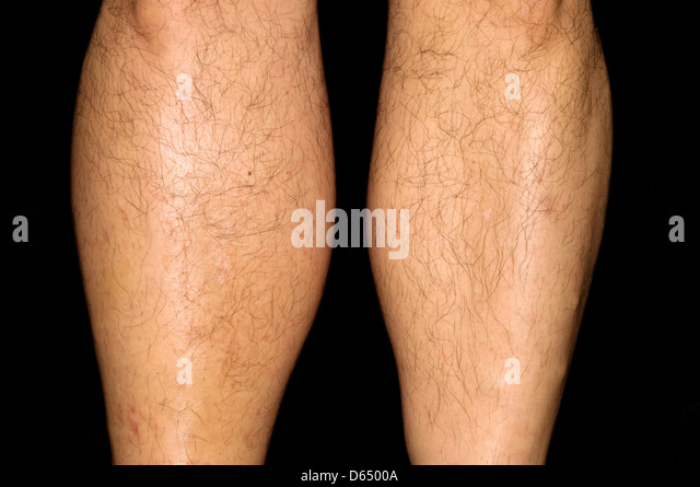 Deep vein thrombosis - Stock Image
