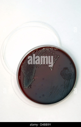 a bacterial infection of blood poisoning Septicemia, formerly called blood poisoning, infection resulting from the presence of bacteria in the blood ()the onset of septicemia is signaled by a high fever, chills, weakness, and excessive sweating, followed by a decrease in blood pressure.
