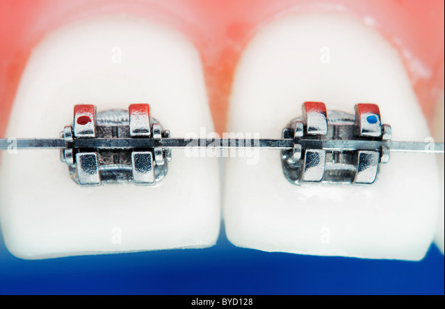 Front teeth braces super macro , shallow depth of field - Stock-Bilder