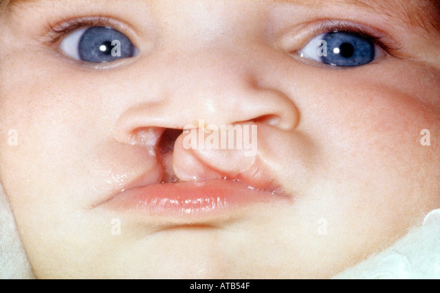 a child with cleft lip Dad with cleft lip adopts baby just like him janie fulling, humankind published 9 :28 am et june 17, 2017 | updated 11:54 am et july 14, 2017 close.
