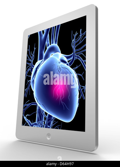 Tablet computer, heart attack artwork - Stock Image