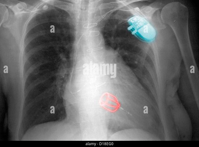 CXR, Starr-Edwards silastic ball heart valve - Stock Image