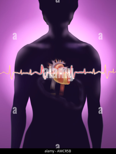 An illustration depicting a woman having a heart attack. - Stock Image