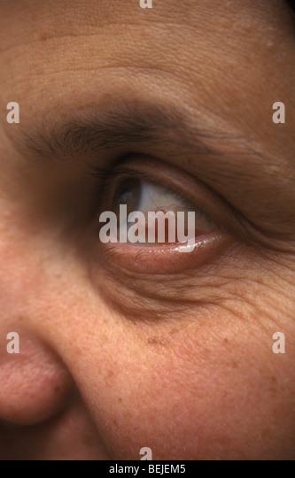 Bruising Stock Photos Amp Bruising Stock Images Alamy