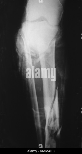 Fractured Tibia Stock Photos & Fractured Tibia Stock ...