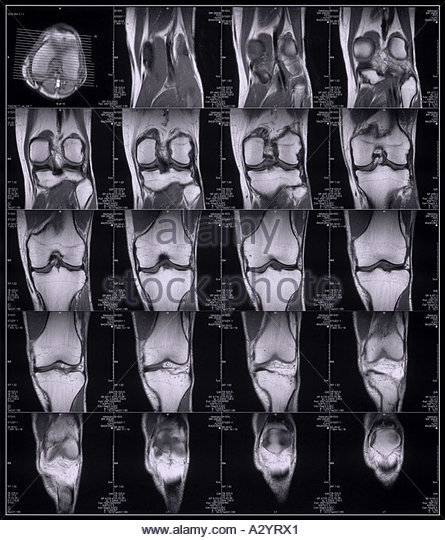 MRI scans of a knee - Stock Image