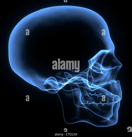 Human skull  X-ray artwork - Stock Image