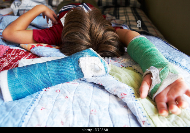 Boy lying in bed with a broken arm - Stock Image