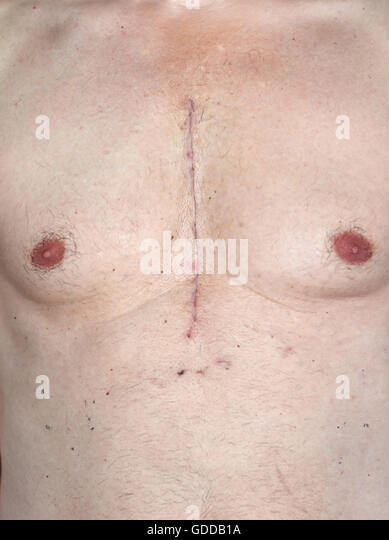 Scar from open heart surgery,where the sternum was cut in two,and the rib cage sprung. Below the scar holes show - Stock Image