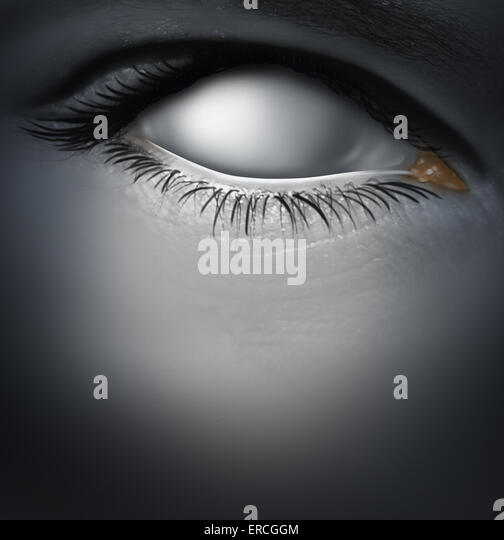 Lost concept and losing memory caused by dementia as alzheimers disease with a blind human eye as a blank white - Stock-Bilder