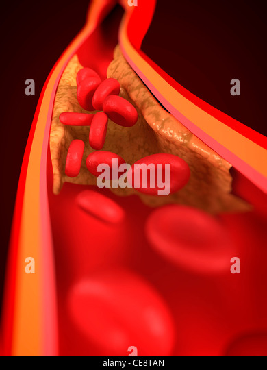 Narrowed artery. Computer artwork of an artery that is partially blocked by an atheroma. - Stock Image
