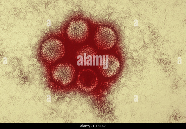 Electron micrograph of canine adenovirus - Stock Image