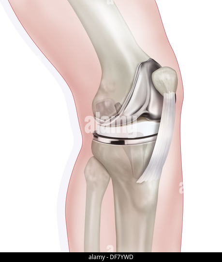 the knee prothesis Read more about the care and use of joint and corset below knee prosthesis at scheck & siress.
