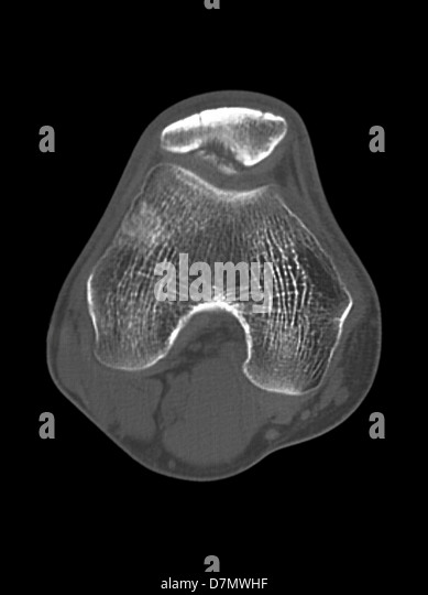 Knee disease, CT scan - Stock Image
