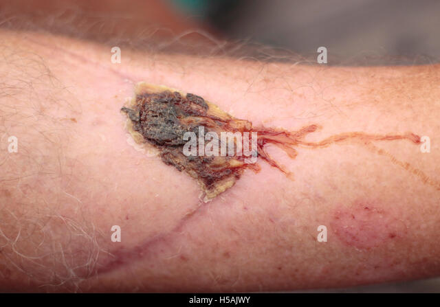 Man's leg with scar tissue and a large weeping scab - Stock Image