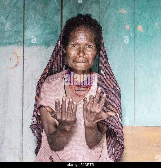 Missing fingers. Dani tribe ladies cut off their fingers to demonstrate their pain at the loss of a younger family - Stock Image
