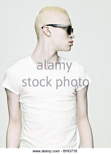 Cool looking young albino man - Stock-Bilder