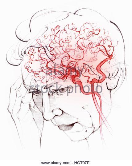 Brain blood supply in elderly woman with vascular dementia - Stock-Bilder