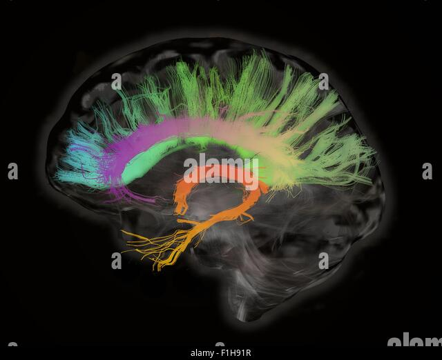 The fiber tracts involved aging. splenium genu corpus callosum fornix cingulum bundle. Human subject - Stock Image
