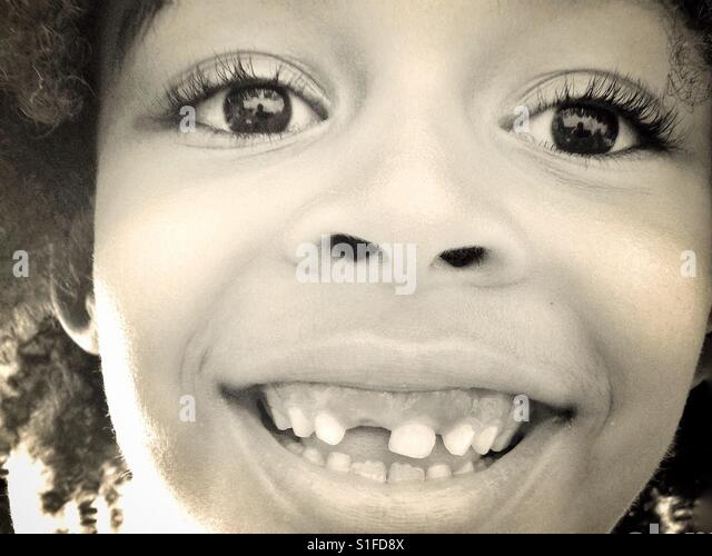 A young girl smiling and showing her missing tooth. - Stock-Bilder