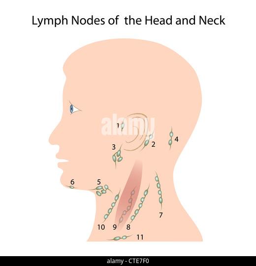 Adult in lymphadenopathy occipital