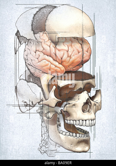 This medical image depicts an exploded view of the skull with the brain in an editorial style illustration. - Stock Image