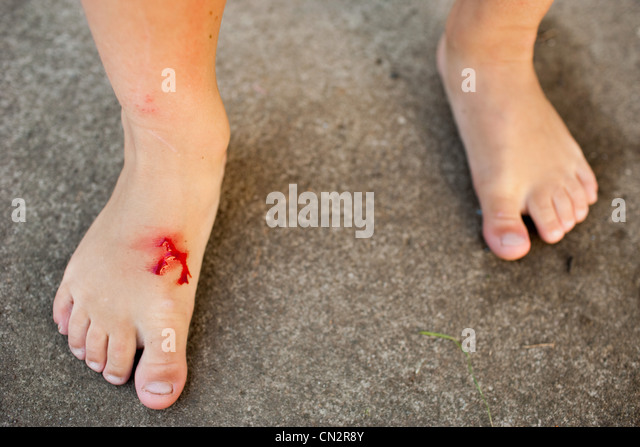 Young girl with cut foot - Stock Image