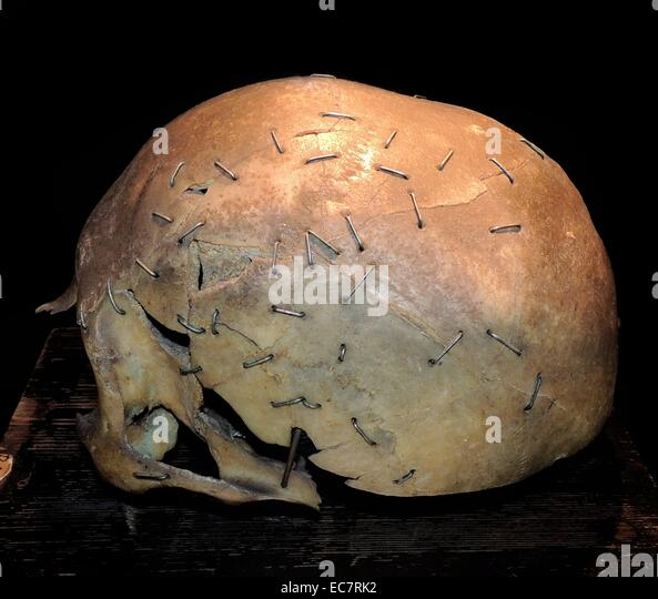 Skull with major injuries.  Located at the Historical Collection, Institute of Pathology, University of Oslo. - Stock Image