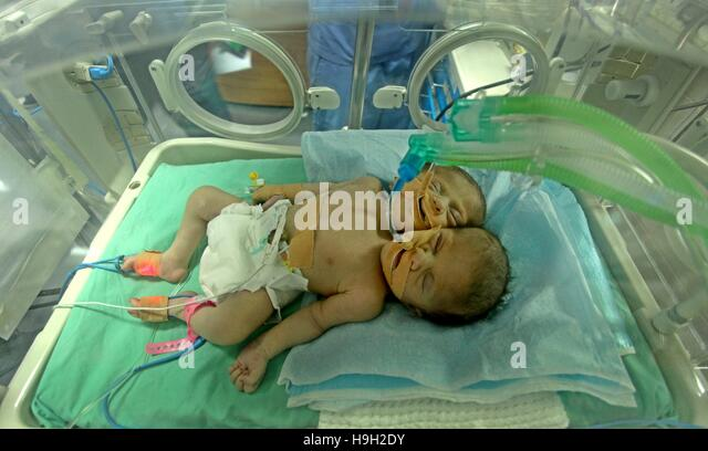 Gaza City, Gaza Strip, Palestinian Territory. 23rd Nov, 2016. One-day-old Palestinian conjoined twin boys lie in - Stock Image