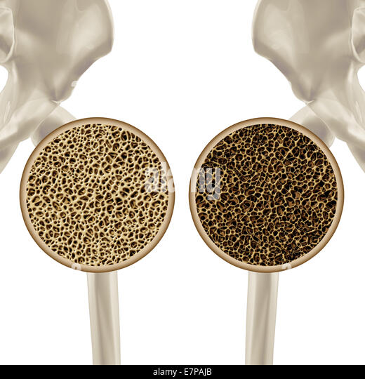 Osteoporosis medical illustration health care concept showing the human skeletal hip joint as a close up of a healthy - Stock-Bilder