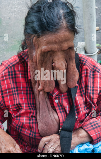 beggar with elephantiasis in Bangkok, Thailand - Stock Image