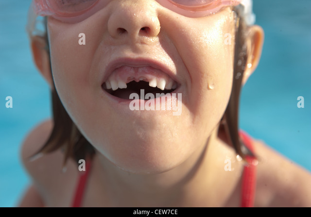 Closeup of girl with her front teeth missing - Stock Image