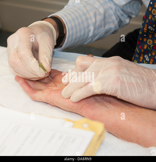Dupuytrens Contracture Stock Photos & Dupuytrens ...