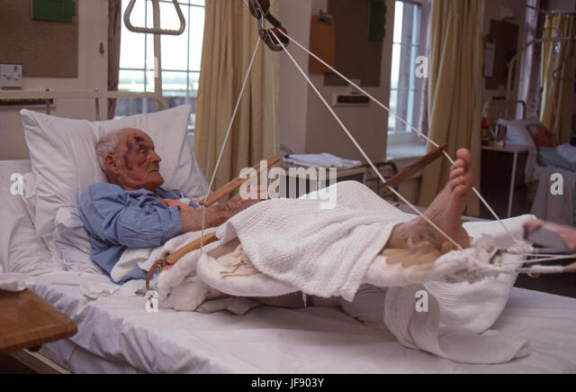 elderly man in a hospital ward after an accident - Stock Image