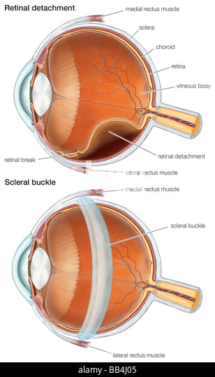 Diagram of a scleral buckle, used to repair a retinal detachment. - Stock Image
