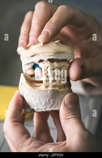 Dental mold with prosthetic tooth, close up. - Stock-Bilder