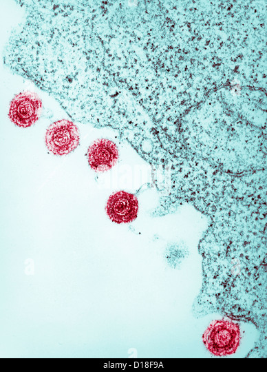 Electron micrograph of human herpes virus-6, HHV-6 - Stock Image