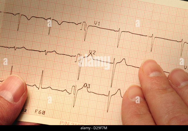 Closeup of electrocardiogram printo - Stock Image