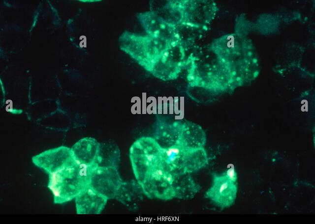 Rubeola (Measles), TEM - Stock Image