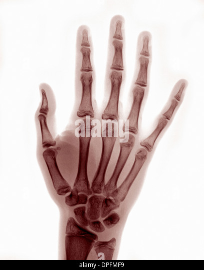 X-ray of hand showing reduced thumb dislocation - Stock Image