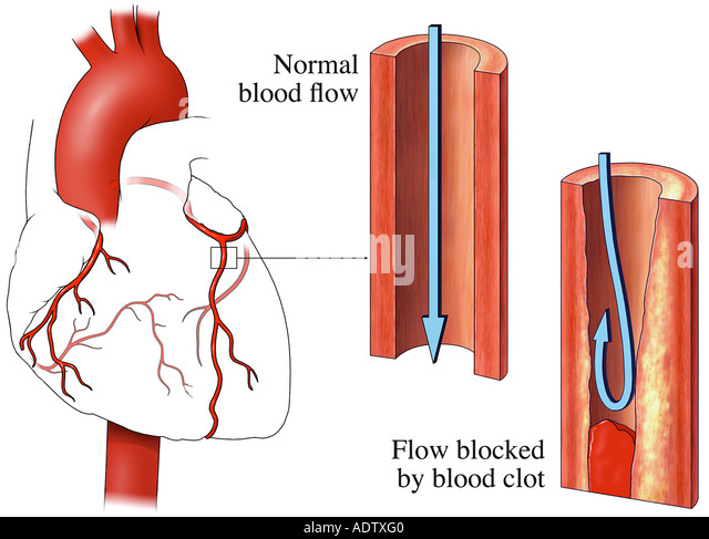 Heart Attack (Myocardial Infarction) Due to Blood Clots - Stock Image