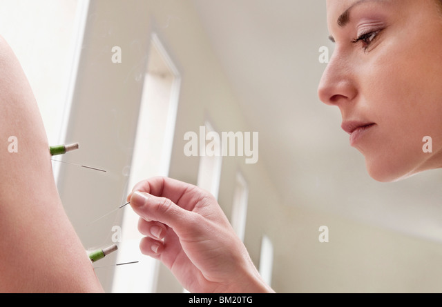 Acupuncturist applying needles and herbal cigars on a person's arm - Stock Image