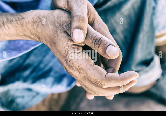Resting hands of a worker. - Stock Image